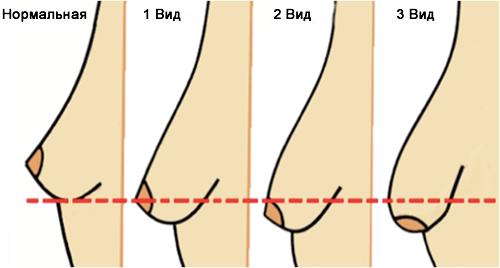 Степень патологии тубулярной груди