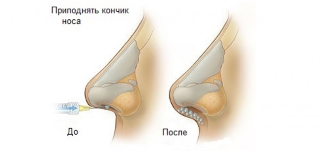 Безоперационная ринопластика кончика носа