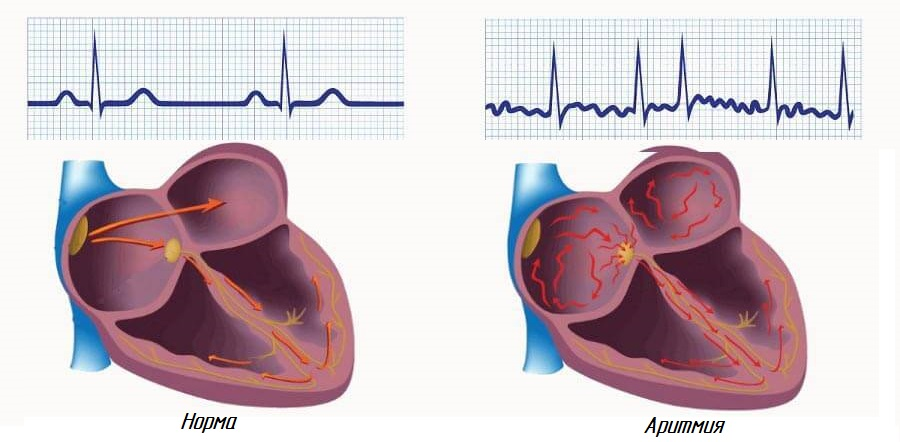 нарушения сердечного ритма при алкоголизме