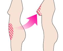восстановление груди с помощью аутологичных тканей