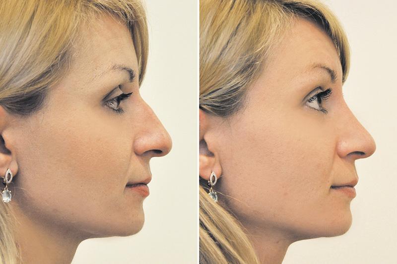 Безоперационная пластика носа