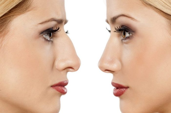 Коррекция горбинки носа