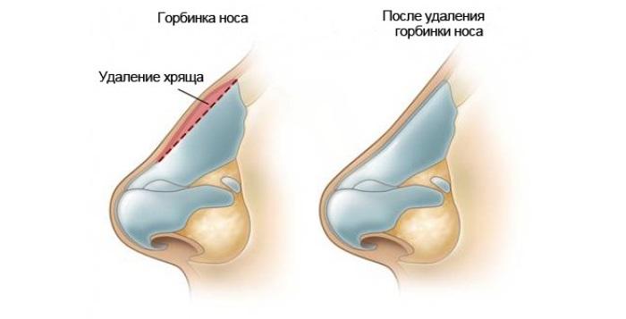 Хирургическая ринопластика горбинки носа