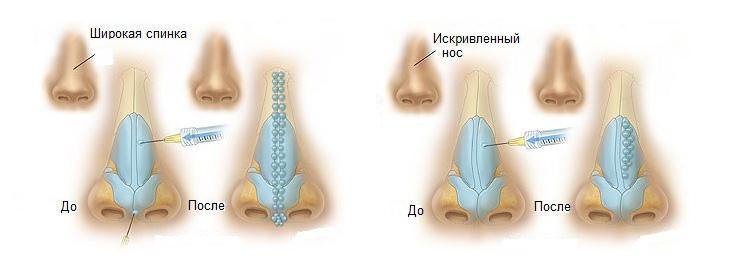 Безоперационное исправление носа