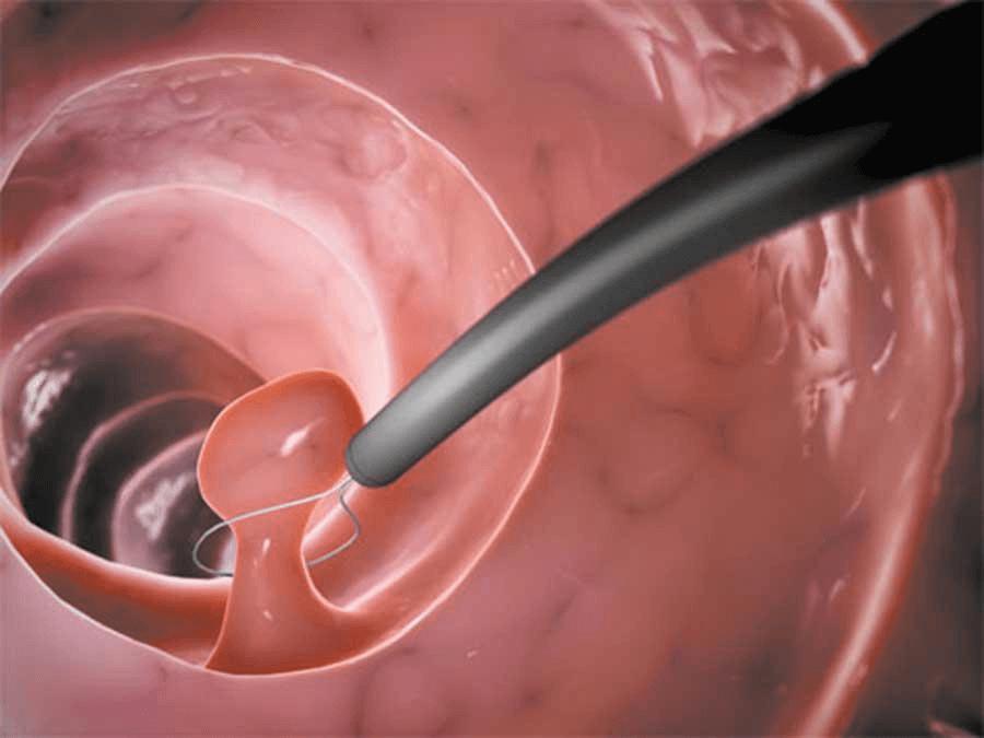 Гистероскопическое удаление полипа матки