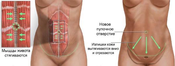 обширная абдоминопластика