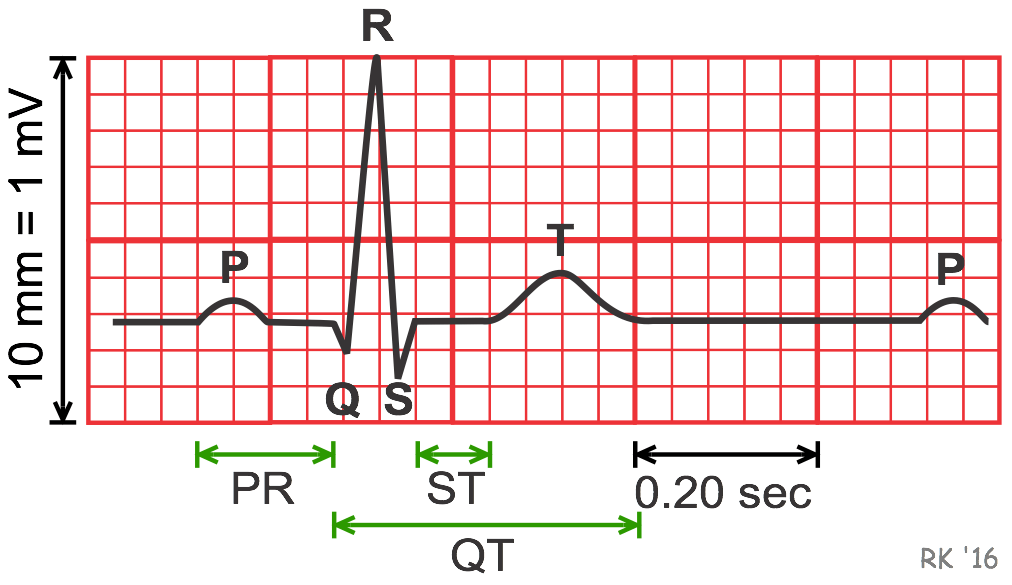 ЭКГ - кардиограмма сердца