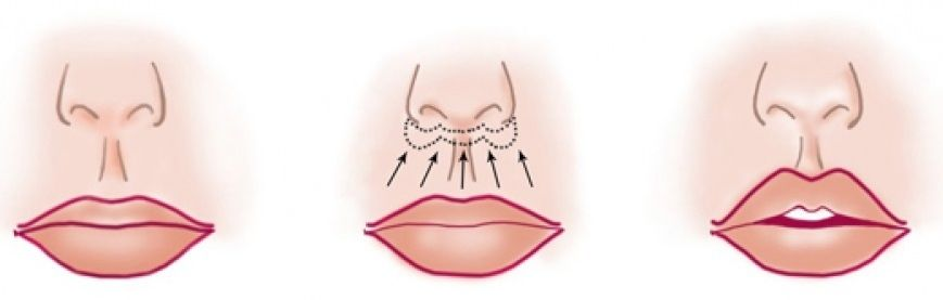 Хейлопластика губ
