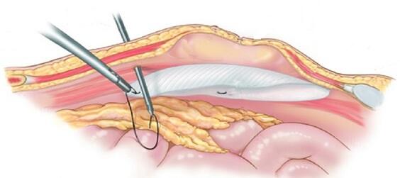 Лапароскопическая операция пупочной грыжи