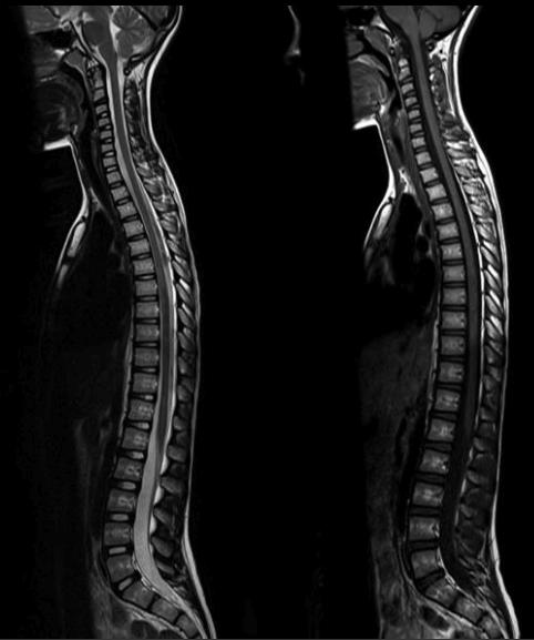 МРТ при вытяжке спины